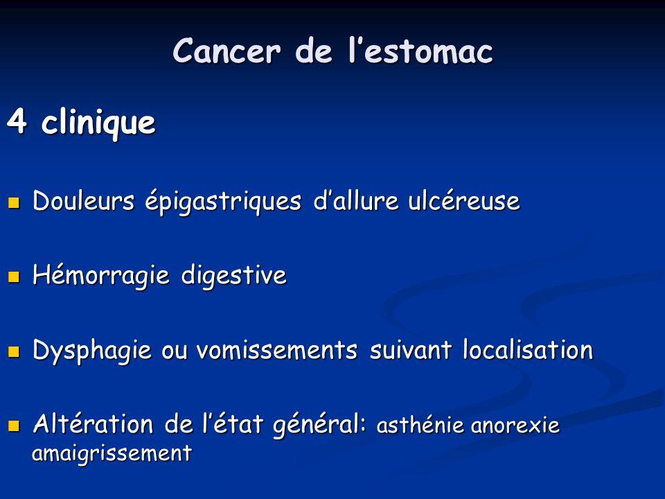 Cancer de l'estomac 4 clinique