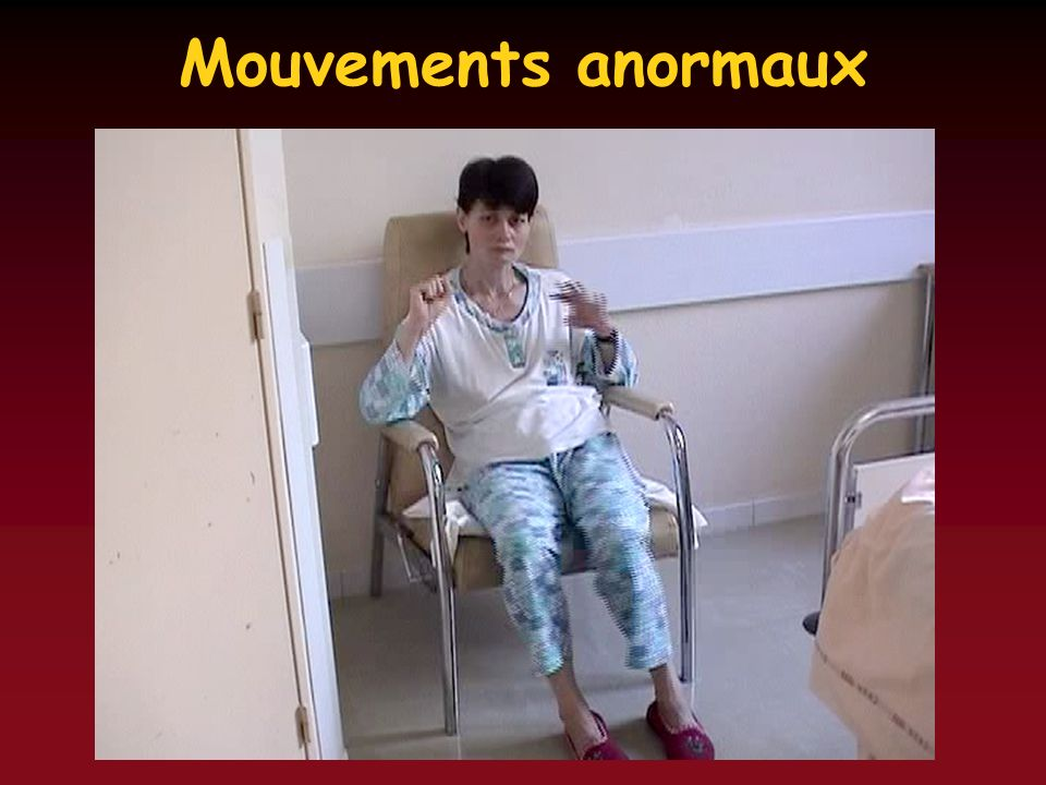 Mouvements anormaux