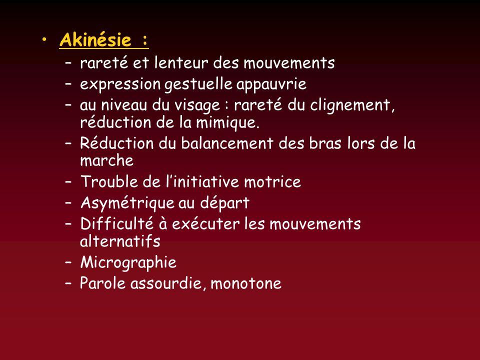 Akinésie : rareté et lenteur des mouvements