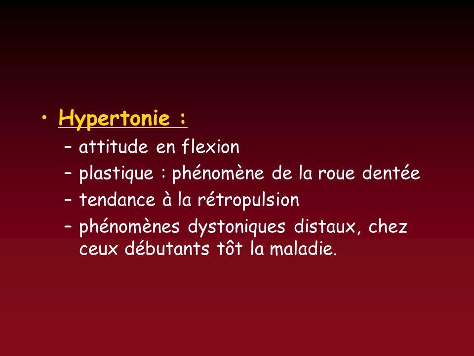 Hypertonie : attitude en flexion