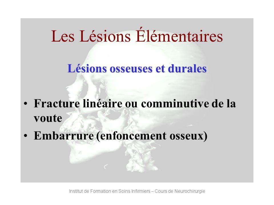 les traumatismes cranio encephaliques pdf