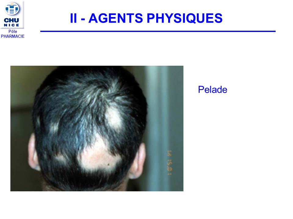II - AGENTS PHYSIQUES Pelade