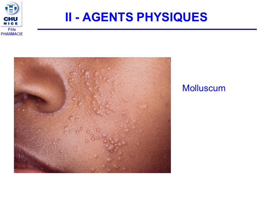 II - AGENTS PHYSIQUES Molluscum