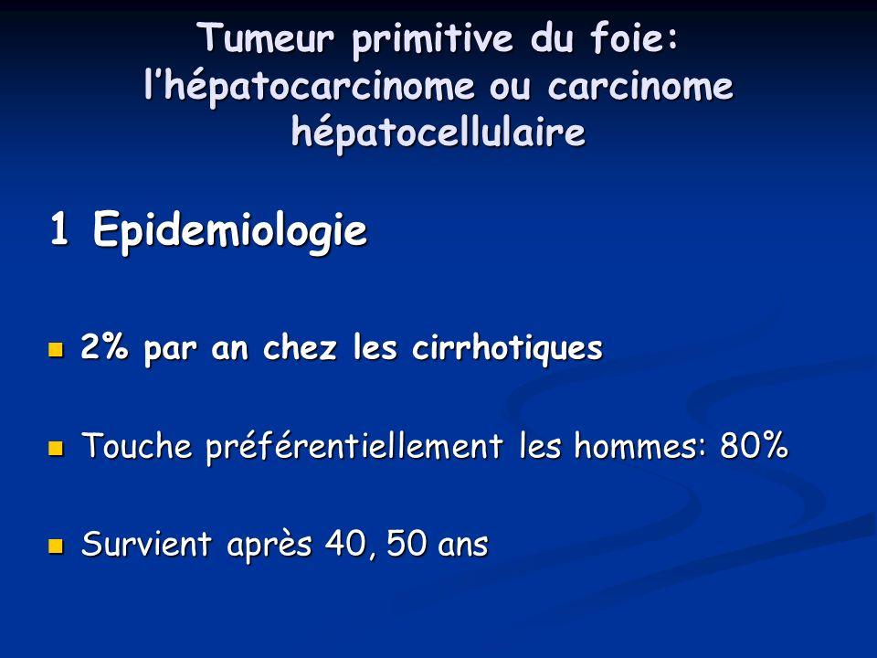 Tumeur primitive du foie: l'hépatocarcinome ou carcinome hépatocellulaire