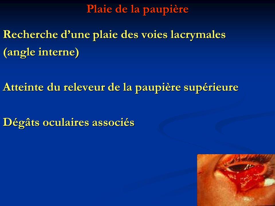 Recherche d'une plaie des voies lacrymales (angle interne)