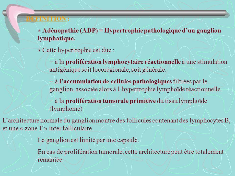 DEFINITION :∗ Adénopathie (ADP) = Hypertrophie pathologique d'un ganglion lymphatique. ∗ Cette hypertrophie est due :