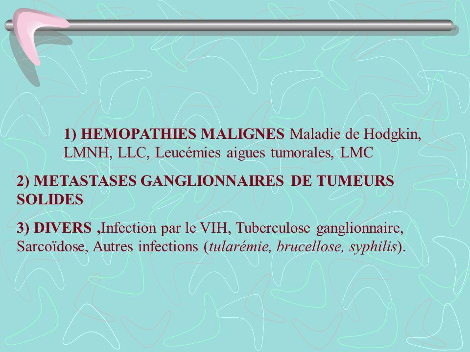 1) HEMOPATHIES MALIGNES Maladie de Hodgkin, LMNH, LLC, Leucémies aigues tumorales, LMC