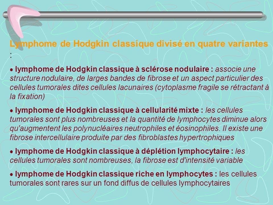 Lymphome de Hodgkin classique divisé en quatre variantes :