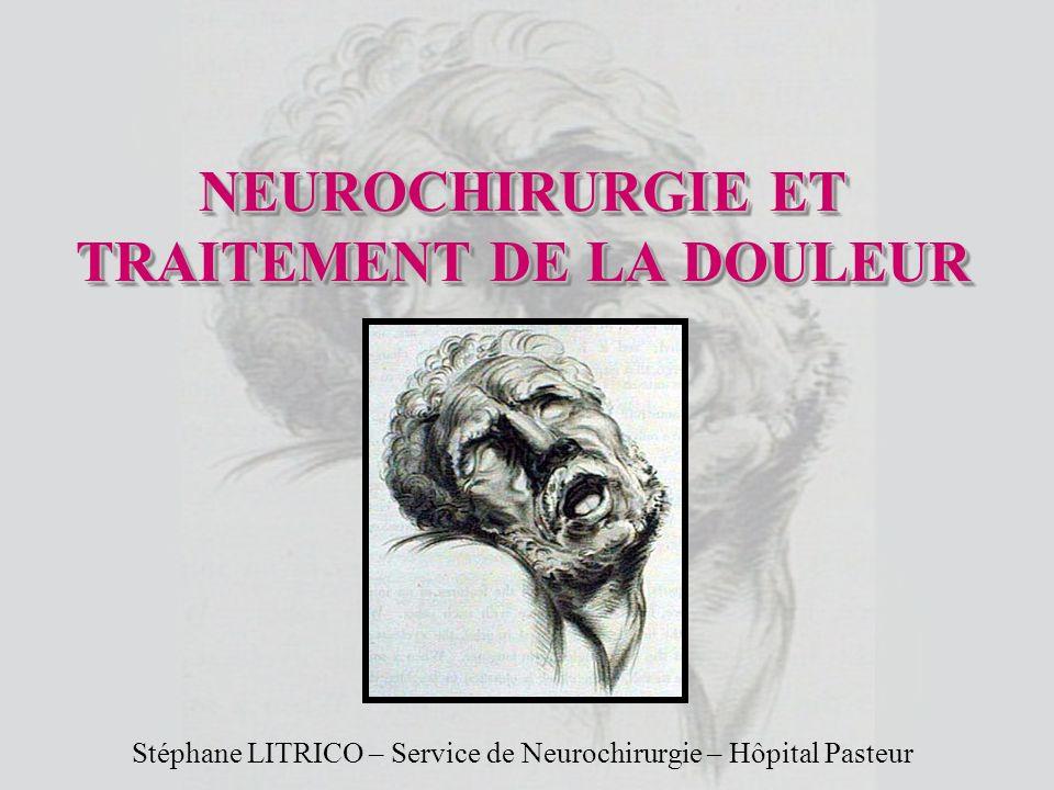 NEUROCHIRURGIE ET TRAITEMENT DE LA DOULEUR