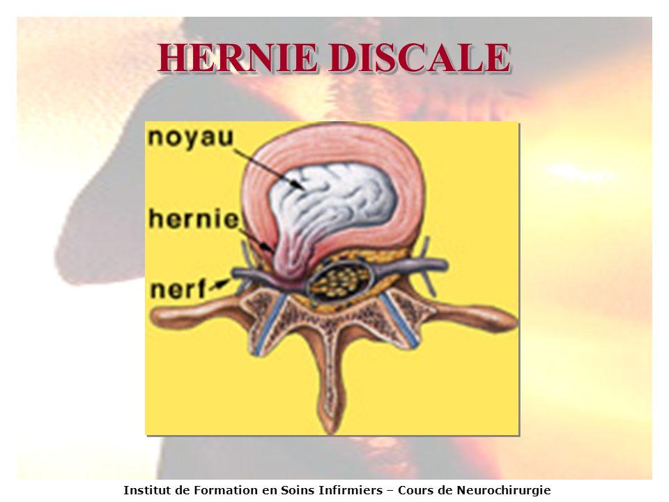 HERNIE DISCALE Institut de Formation en Soins Infirmiers – Cours de Neurochirurgie