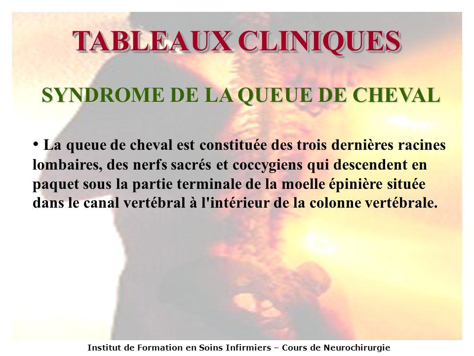 SYNDROME DE LA QUEUE DE CHEVAL