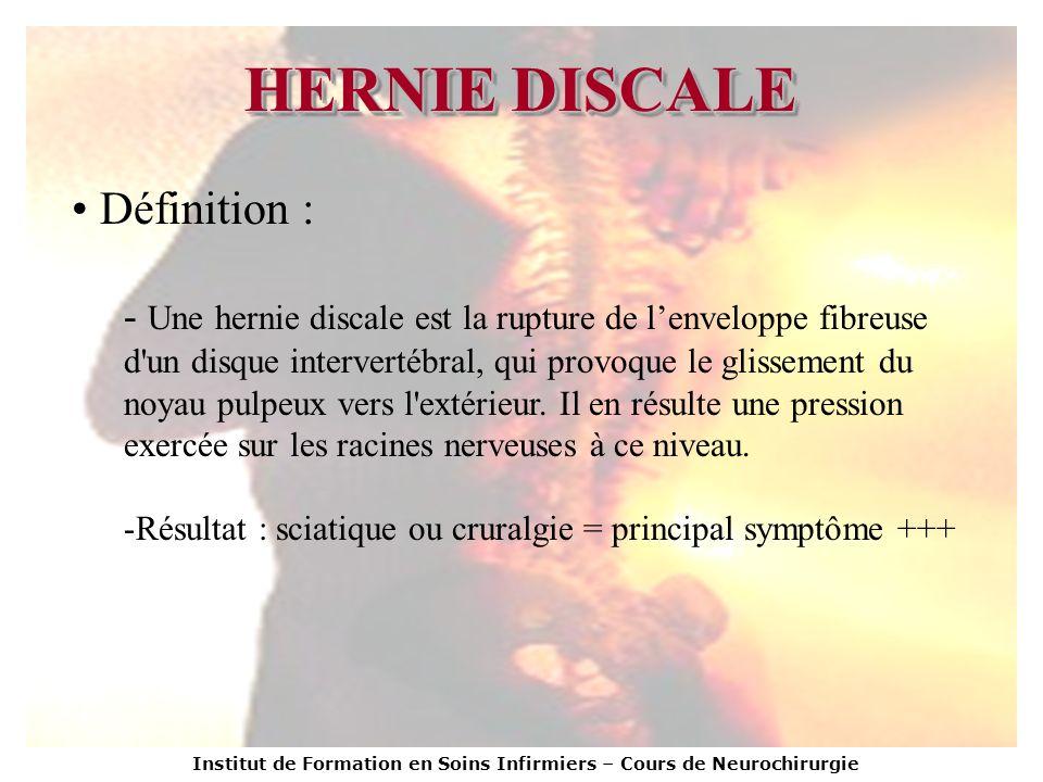 HERNIE DISCALE Définition :