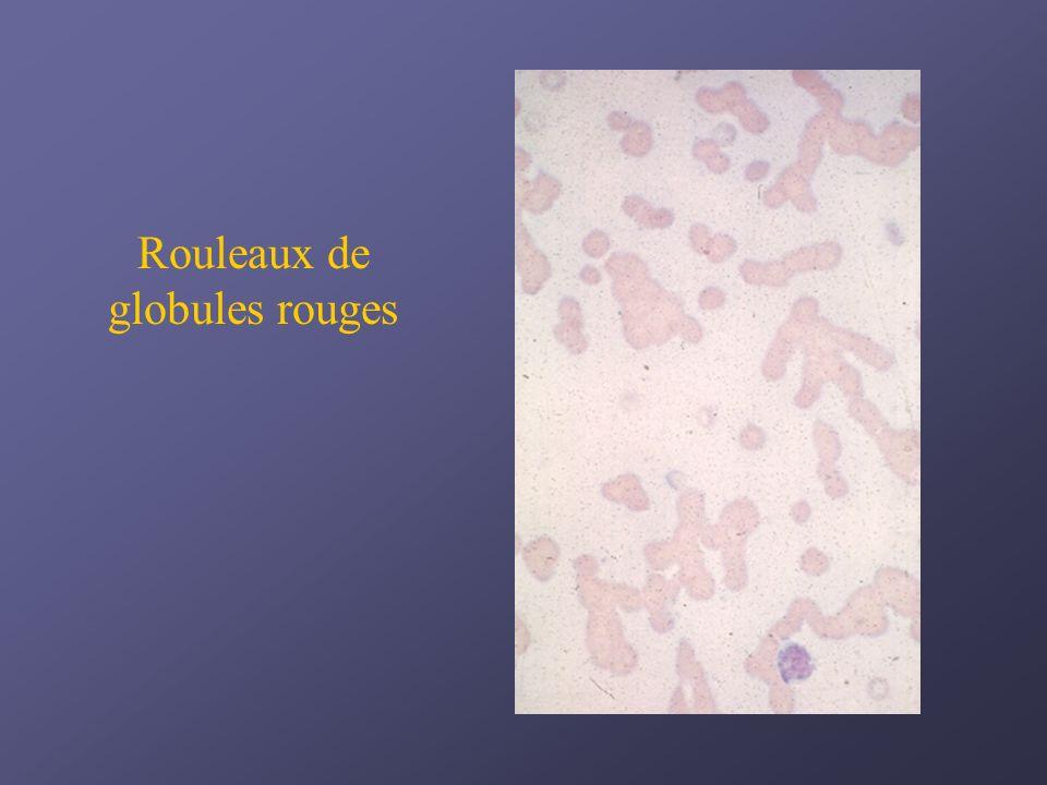 Rouleaux de globules rouges
