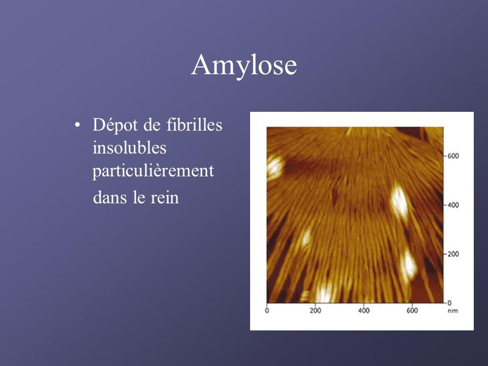 Amylose Dépot de fibrilles insolubles particulièrement dans le rein