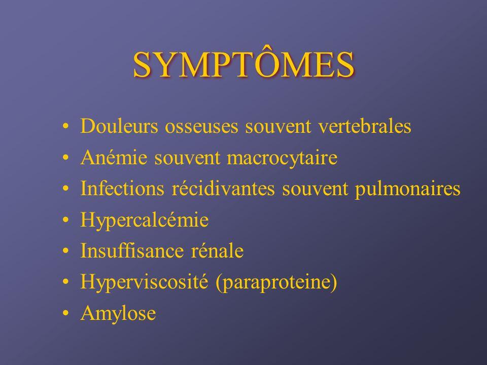 SYMPTÔMES Douleurs osseuses souvent vertebrales