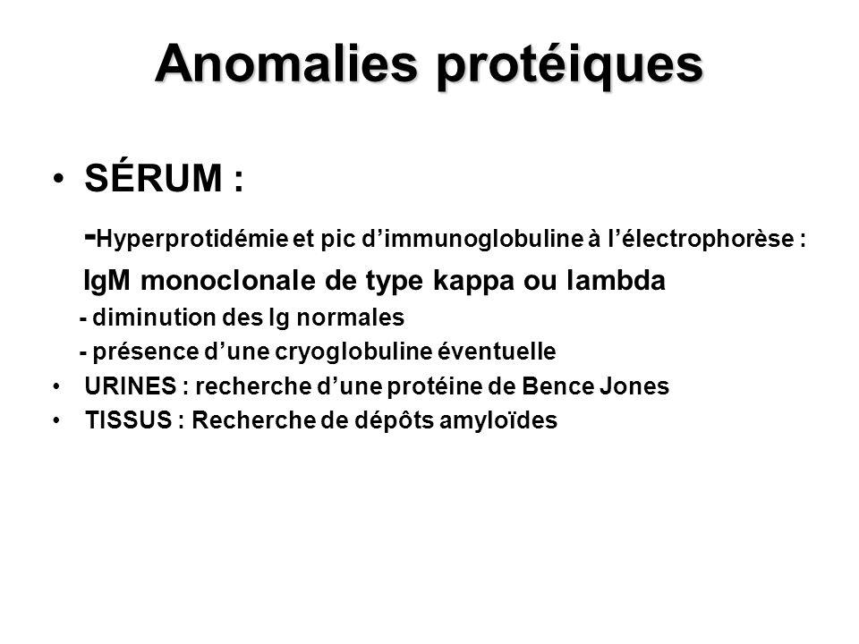 Anomalies protéiques SÉRUM :
