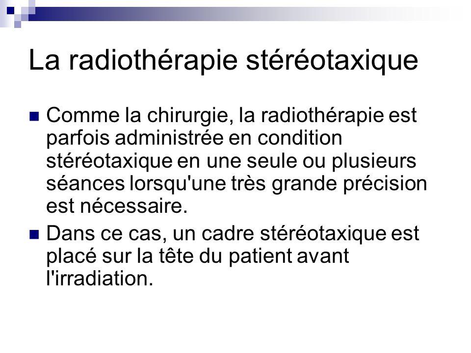 La radiothérapie stéréotaxique
