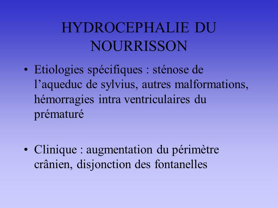 HYDROCEPHALIE DU NOURRISSON