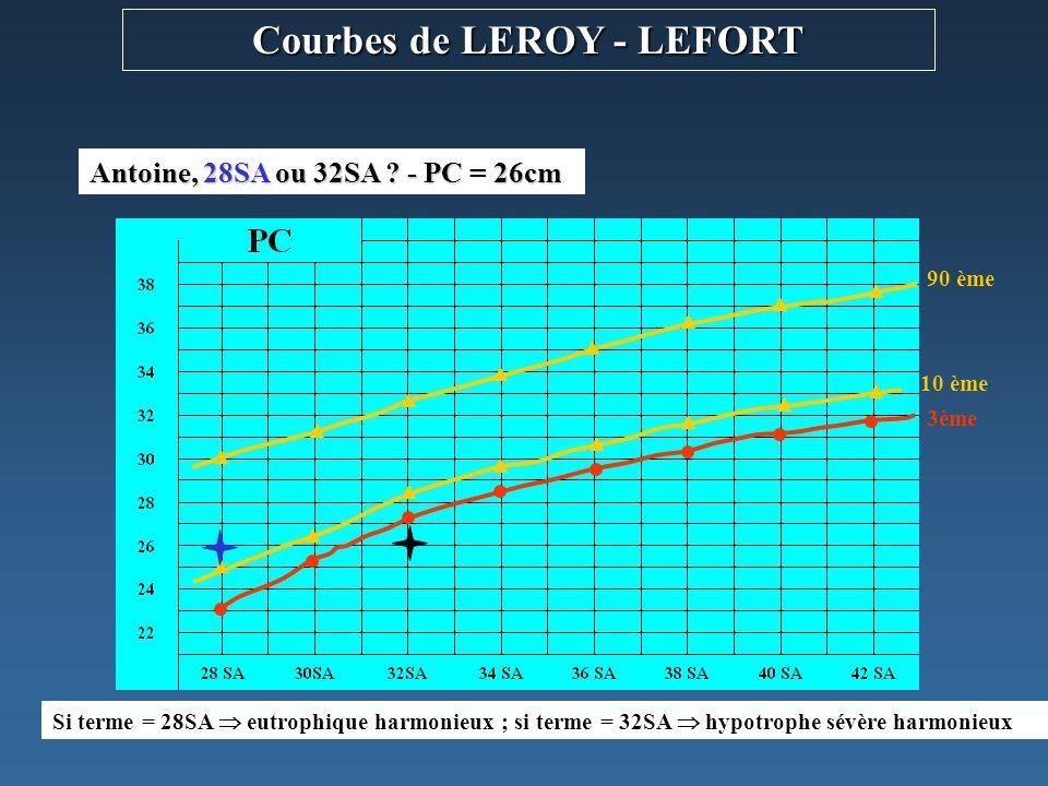 Courbes de LEROY - LEFORT