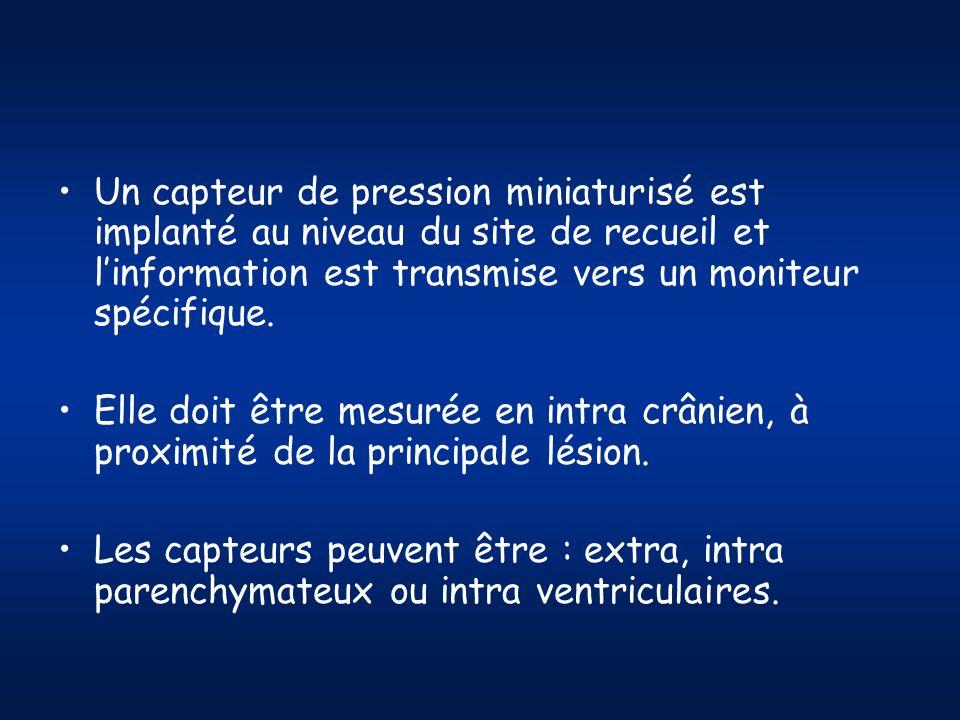 Un capteur de pression miniaturisé est implanté au niveau du site de recueil et l'information est transmise vers un moniteur spécifique.