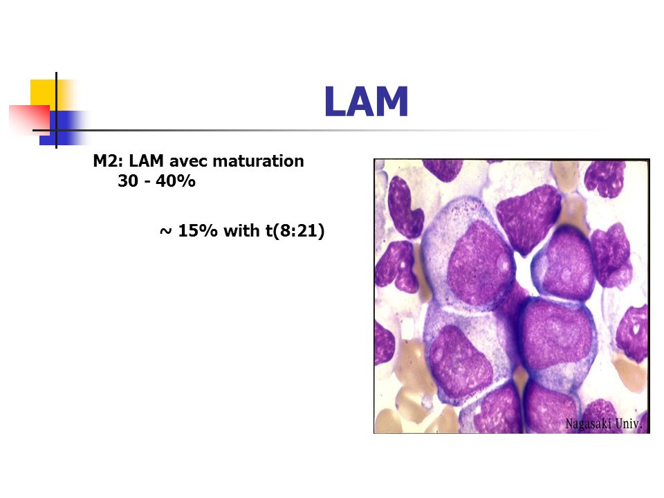 LAM M2: LAM avec maturation 30 - 40% ~ 15% with t(8:21)