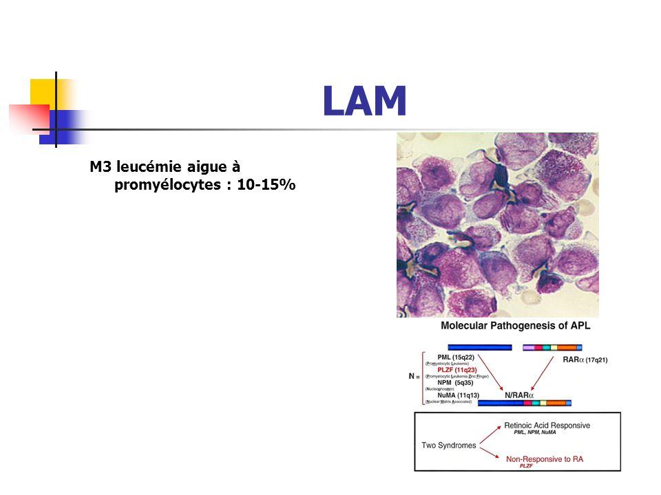 LAM M3 leucémie aigue à promyélocytes : 10-15%