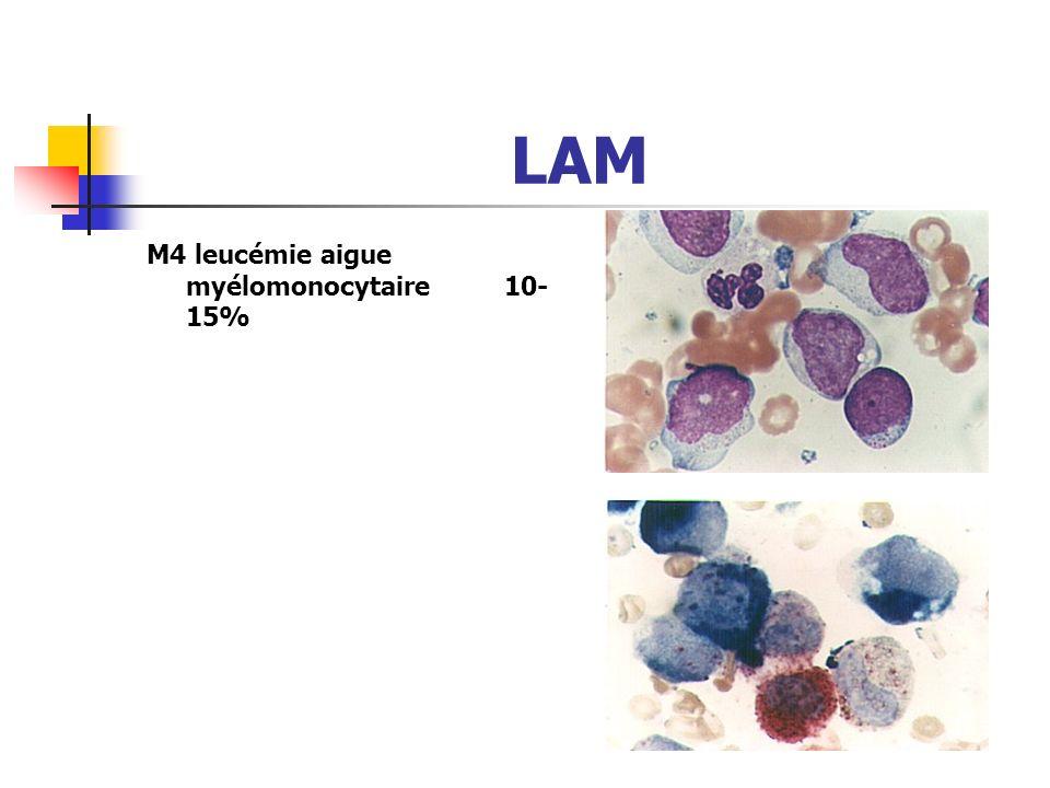 LAM M4 leucémie aigue myélomonocytaire 10-15%