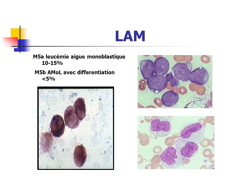 LAM M5a leucémie aigue monoblastique 10-15%