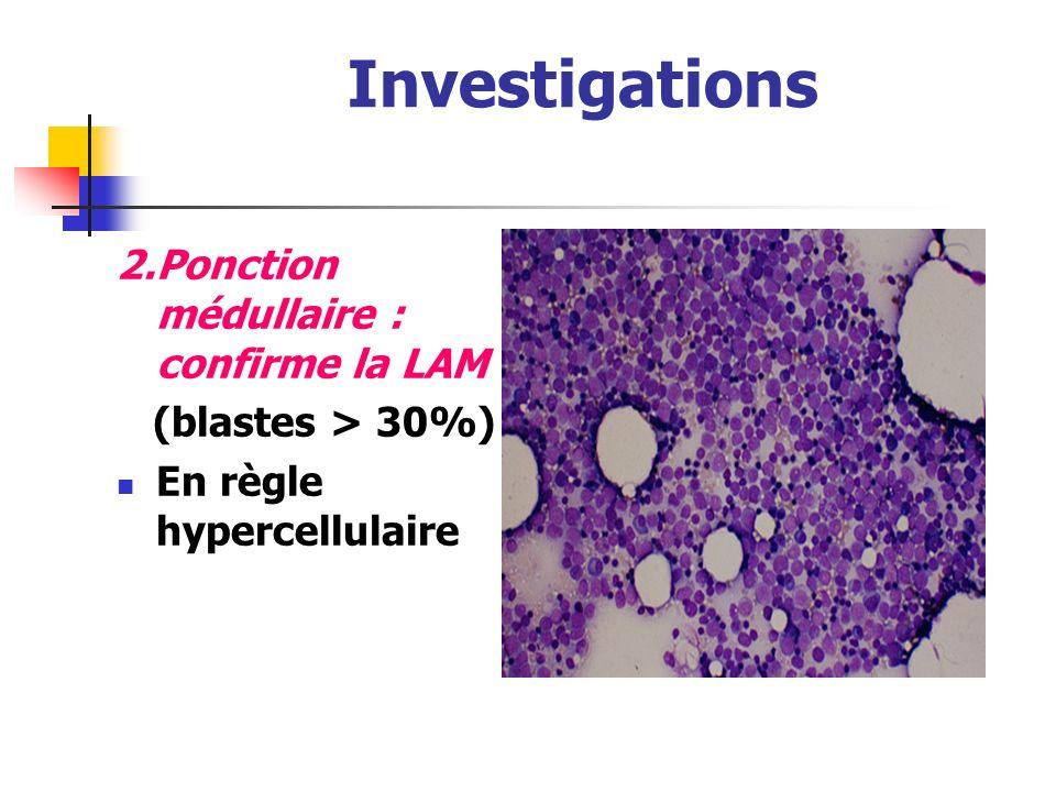 Investigations 2. Ponction médullaire : confirme la LAM