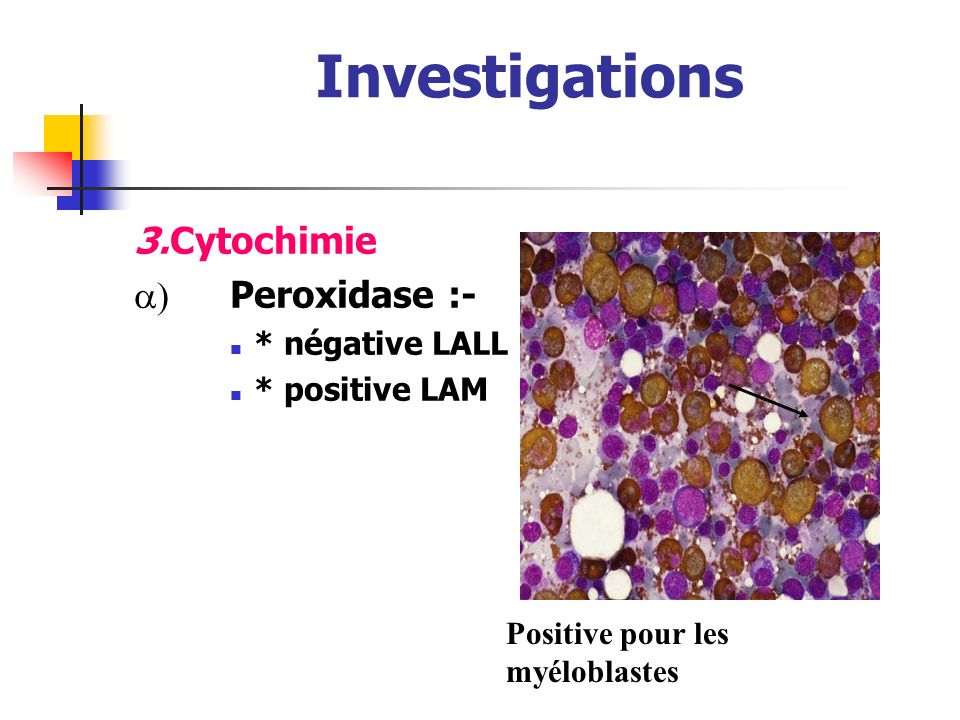 Investigations 3. Cytochimie a) Peroxidase :- * négative LALL