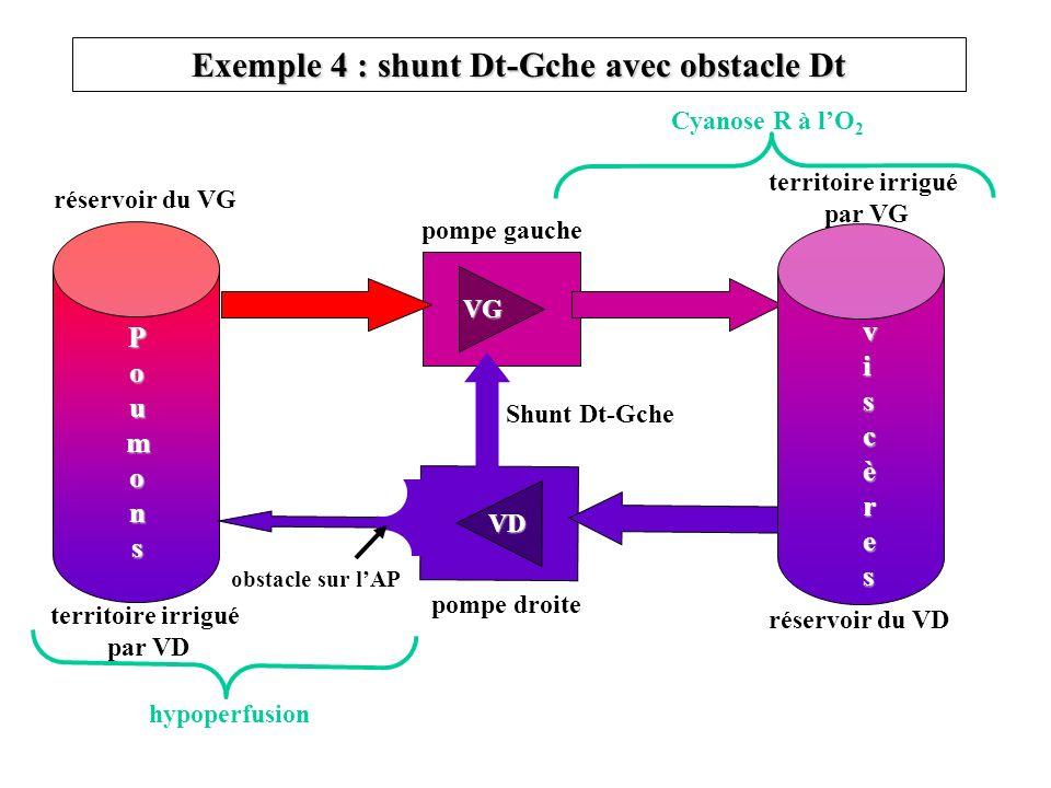 Exemple 4 : shunt Dt-Gche avec obstacle Dt