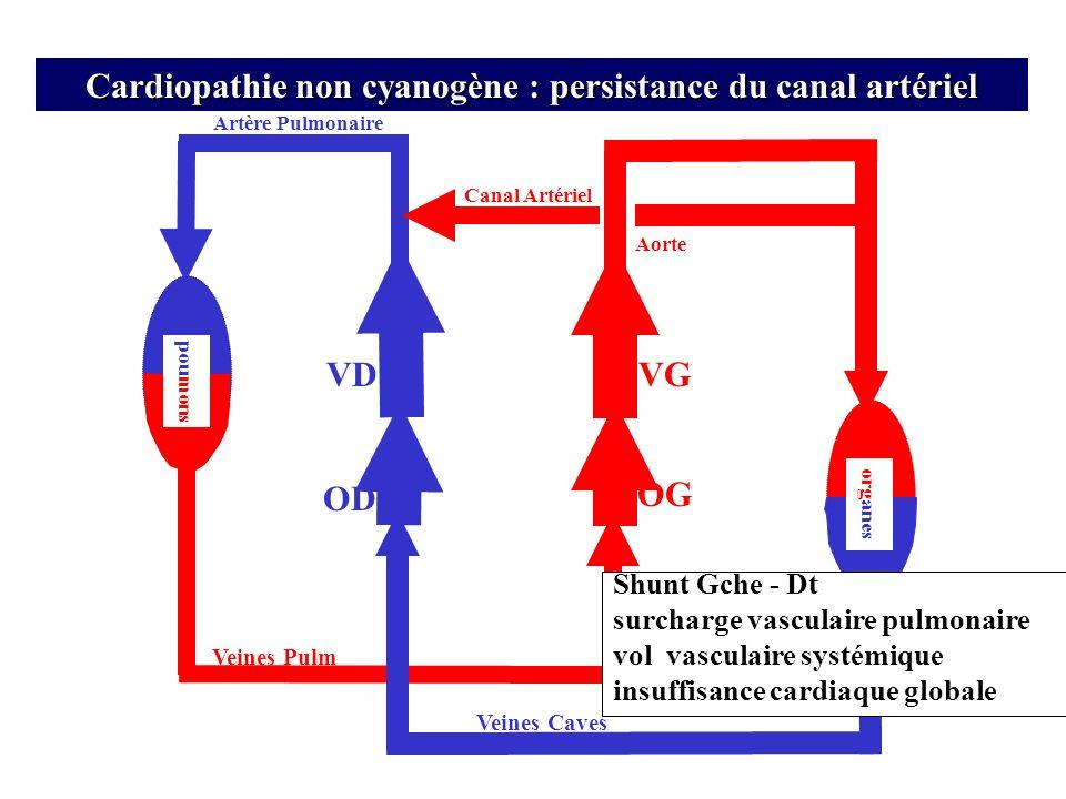 Cardiopathie non cyanogène : persistance du canal artériel