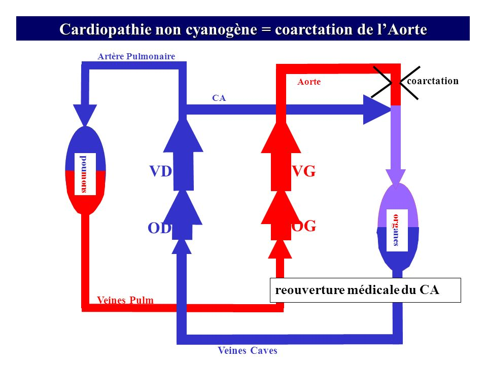 Cardiopathie non cyanogène = coarctation de l'Aorte