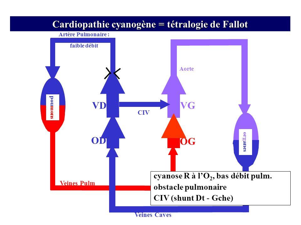 Cardiopathie cyanogène = tétralogie de Fallot