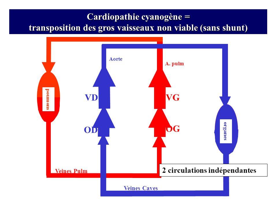 Cardiopathie cyanogène = transposition des gros vaisseaux non viable (sans shunt)