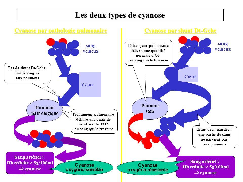 Les deux types de cyanose