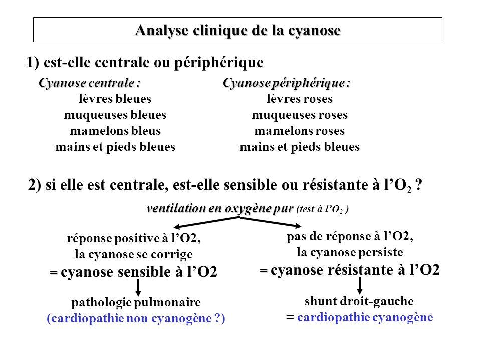 Analyse clinique de la cyanose