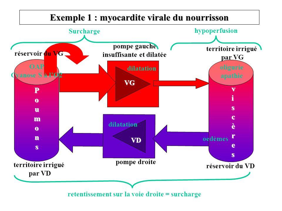 Exemple 1 : myocardite virale du nourrisson
