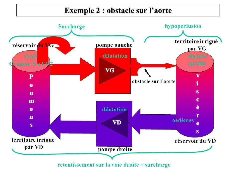 Exemple 2 : obstacle sur l'aorte