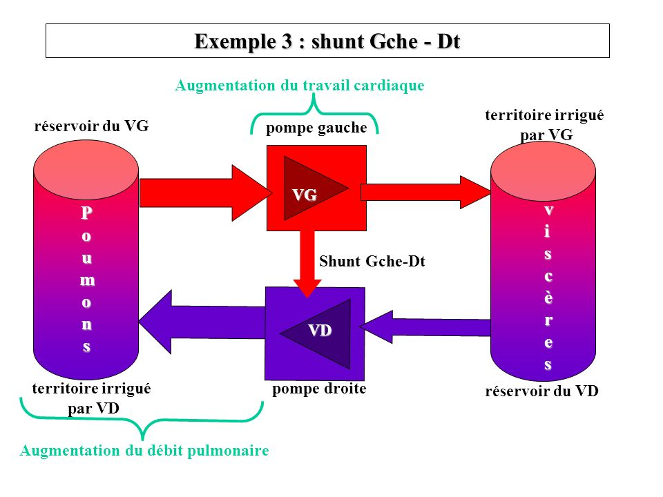 Exemple 3 : shunt Gche - Dt