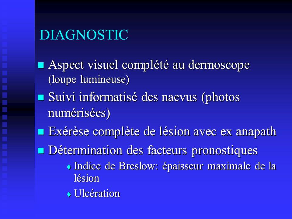 DIAGNOSTIC Aspect visuel complété au dermoscope (loupe lumineuse)