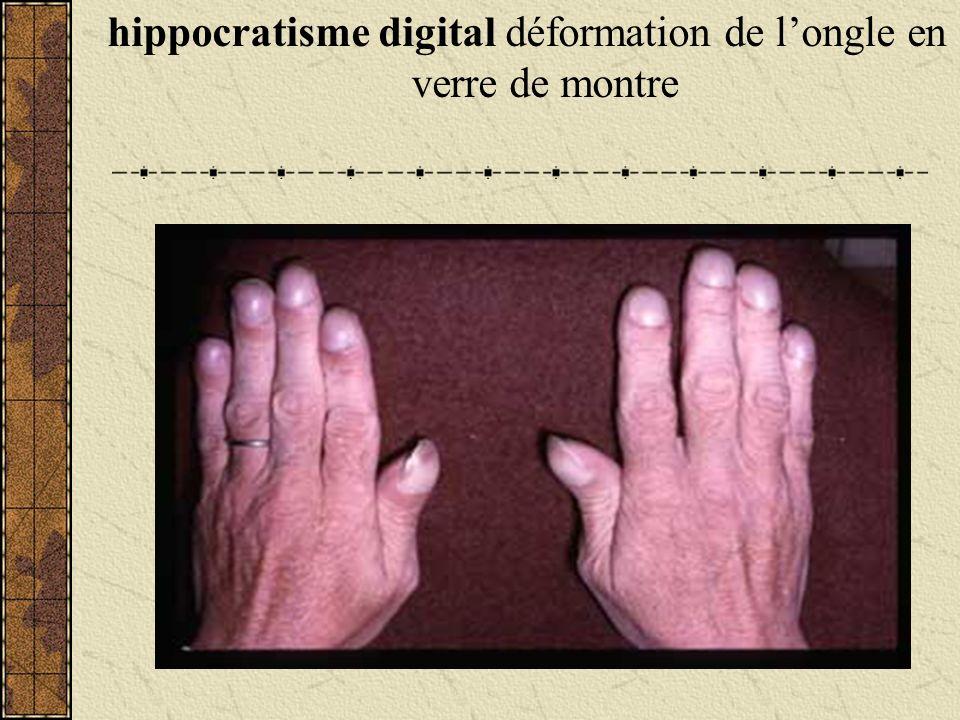 hippocratisme digital déformation de l'ongle en verre de montre