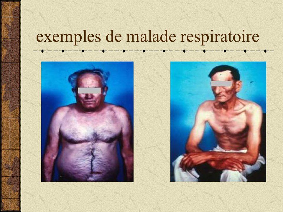 exemples de malade respiratoire