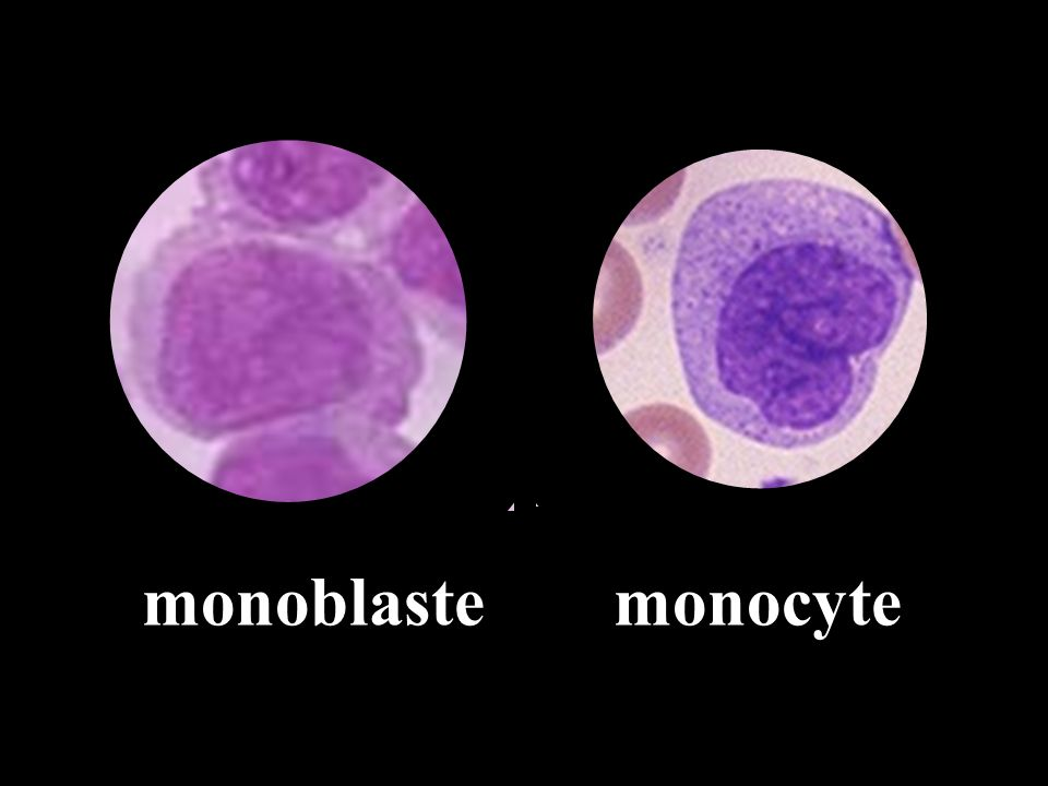 monoblaste monocyte