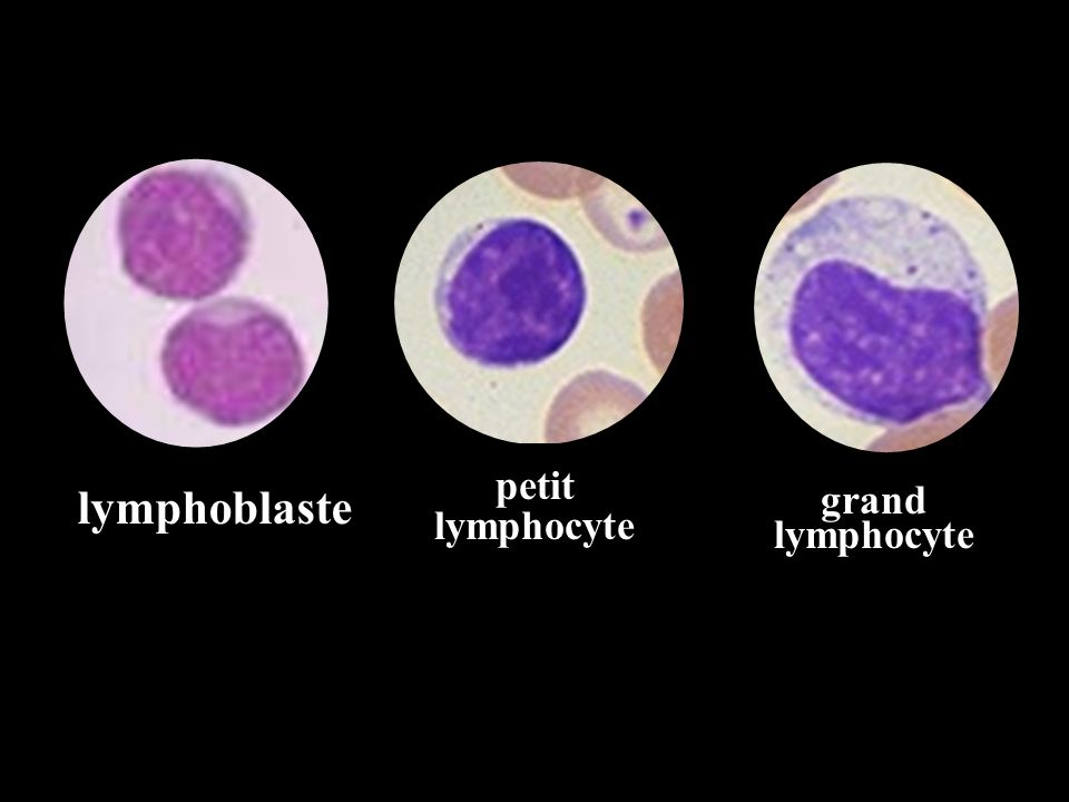 lymphoblaste grand lymphocyte petit lymphocyte