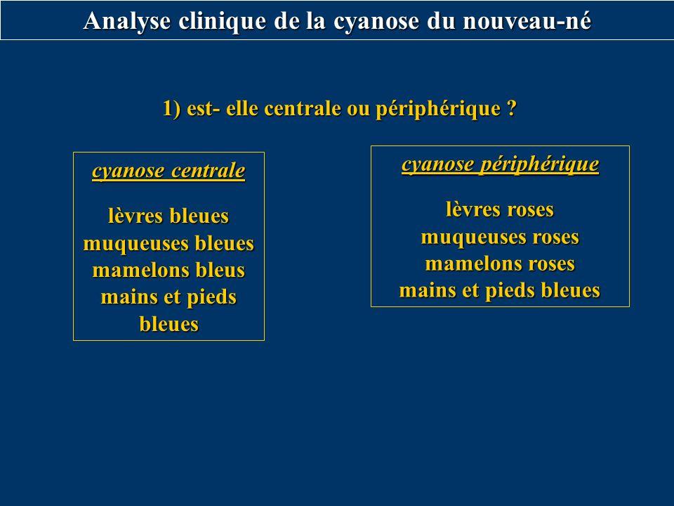 Analyse clinique de la cyanose du nouveau-né
