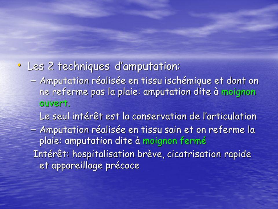Les 2 techniques d'amputation: