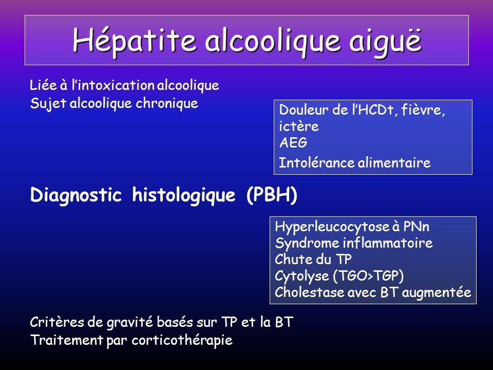 Hépatite alcoolique aiguë