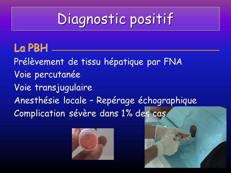 Diagnostic positif La PBH Prélèvement de tissu hépatique par FNA
