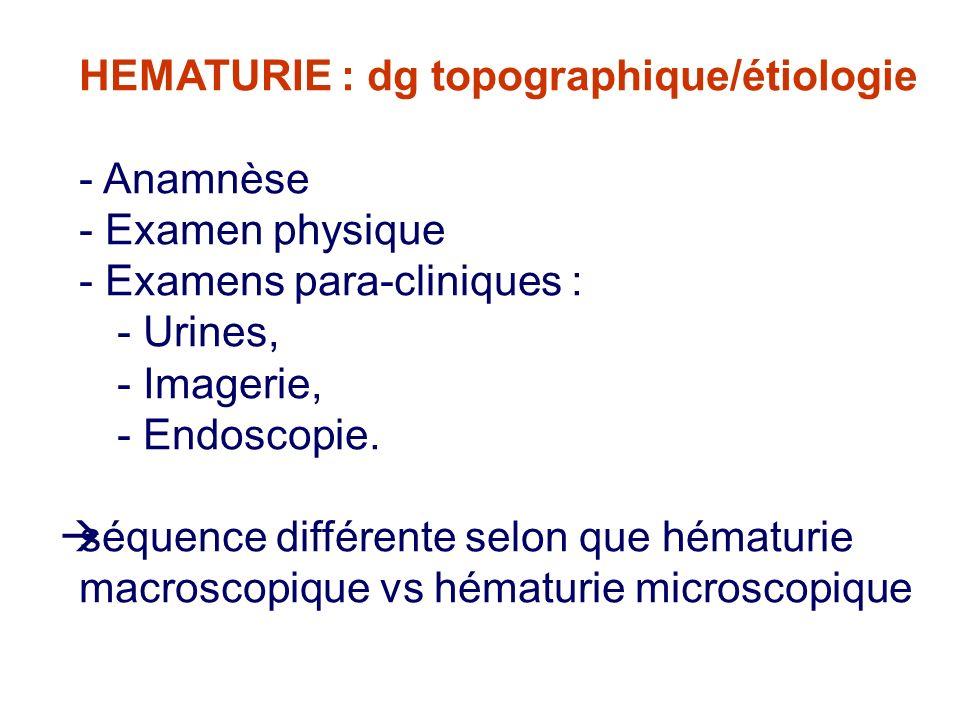 HEMATURIE : dg topographique/étiologie